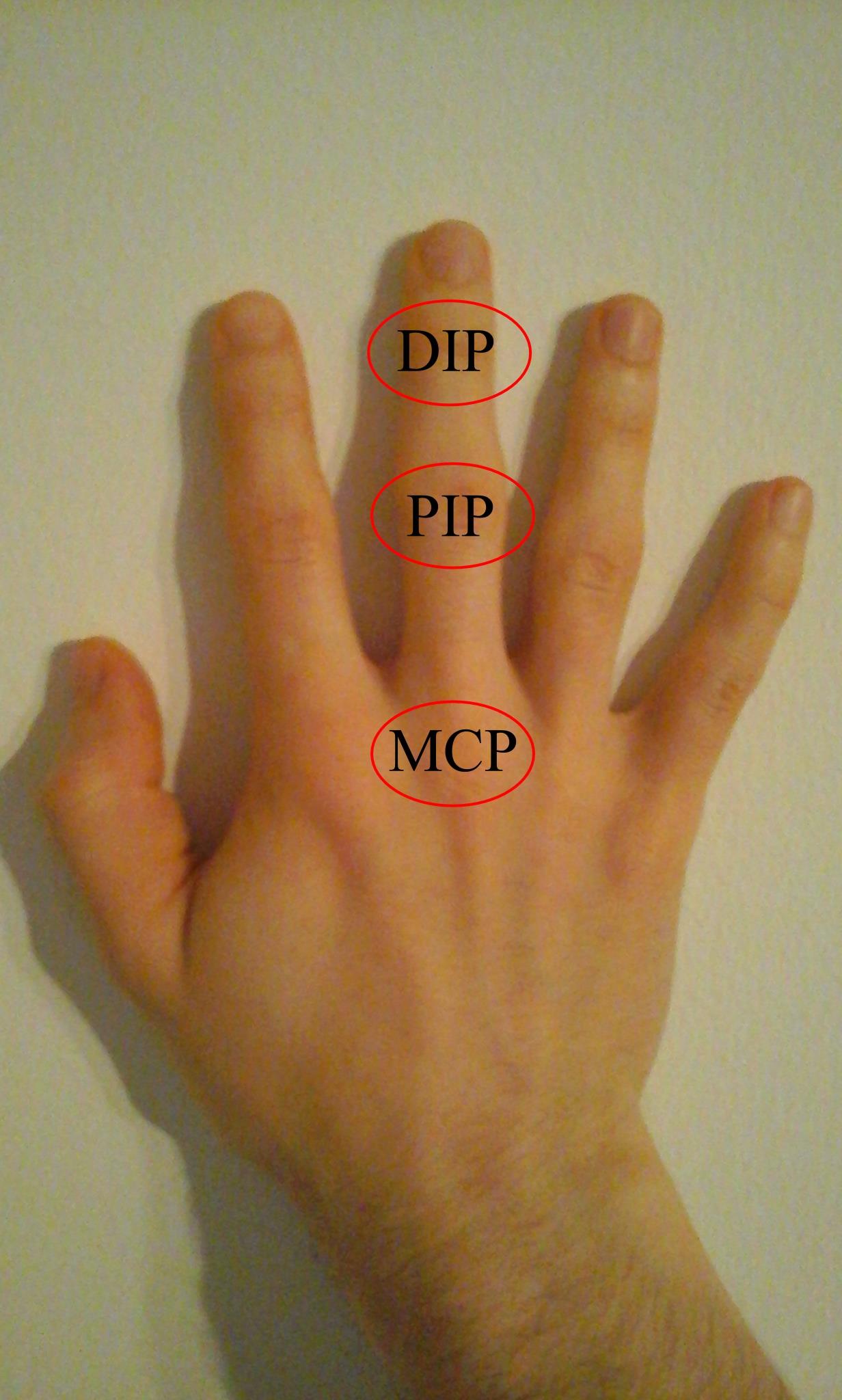 ujj-ízületi arthrosis kezelés