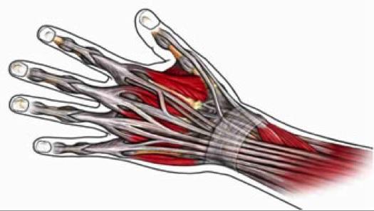 Reumatoid artritisz, az egyik legsúlyosabb mozgásszervi betegség - Dr. Zátrok Zsolt blog