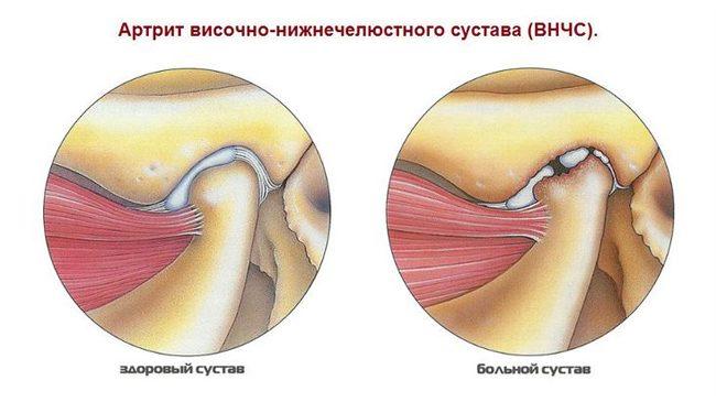 zárt ízületi csontkárosodás