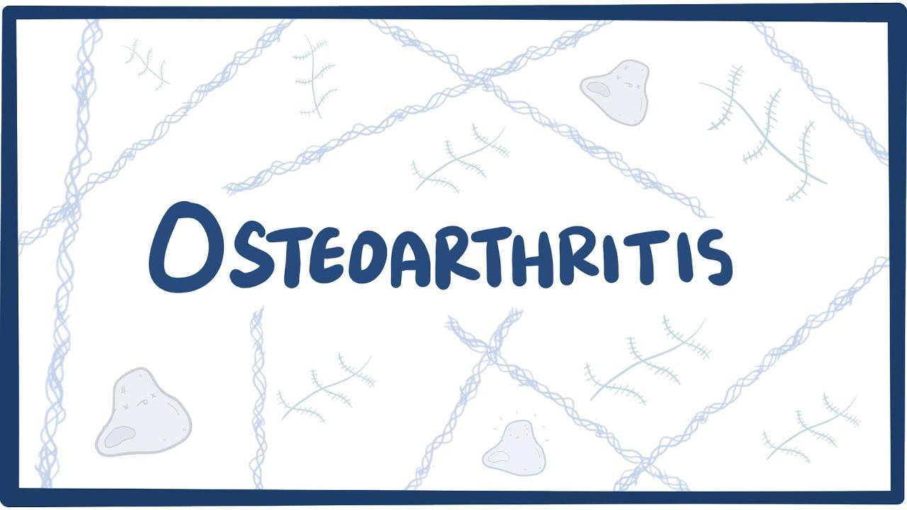 Deformáló artrózis a bokaízület 1-2 fokos. Mi az arthrózis?