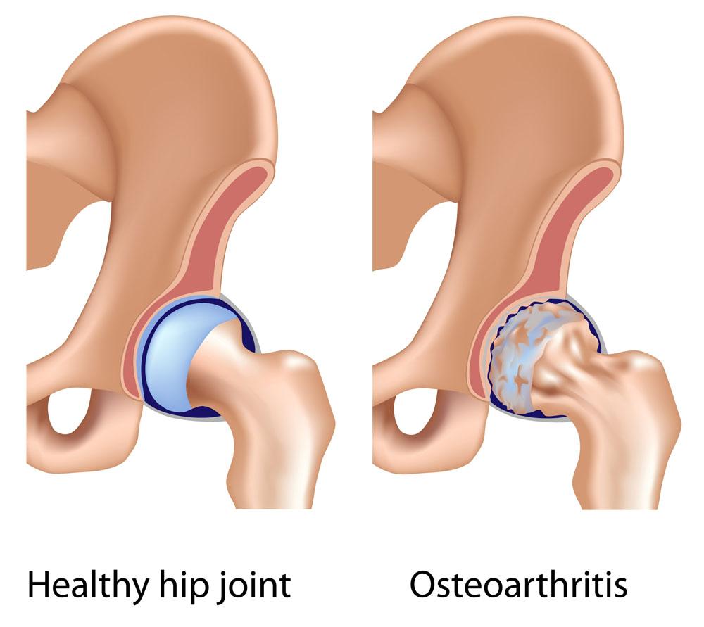 csípőprotézis helyett új lézeres kezelés csípőkopásra