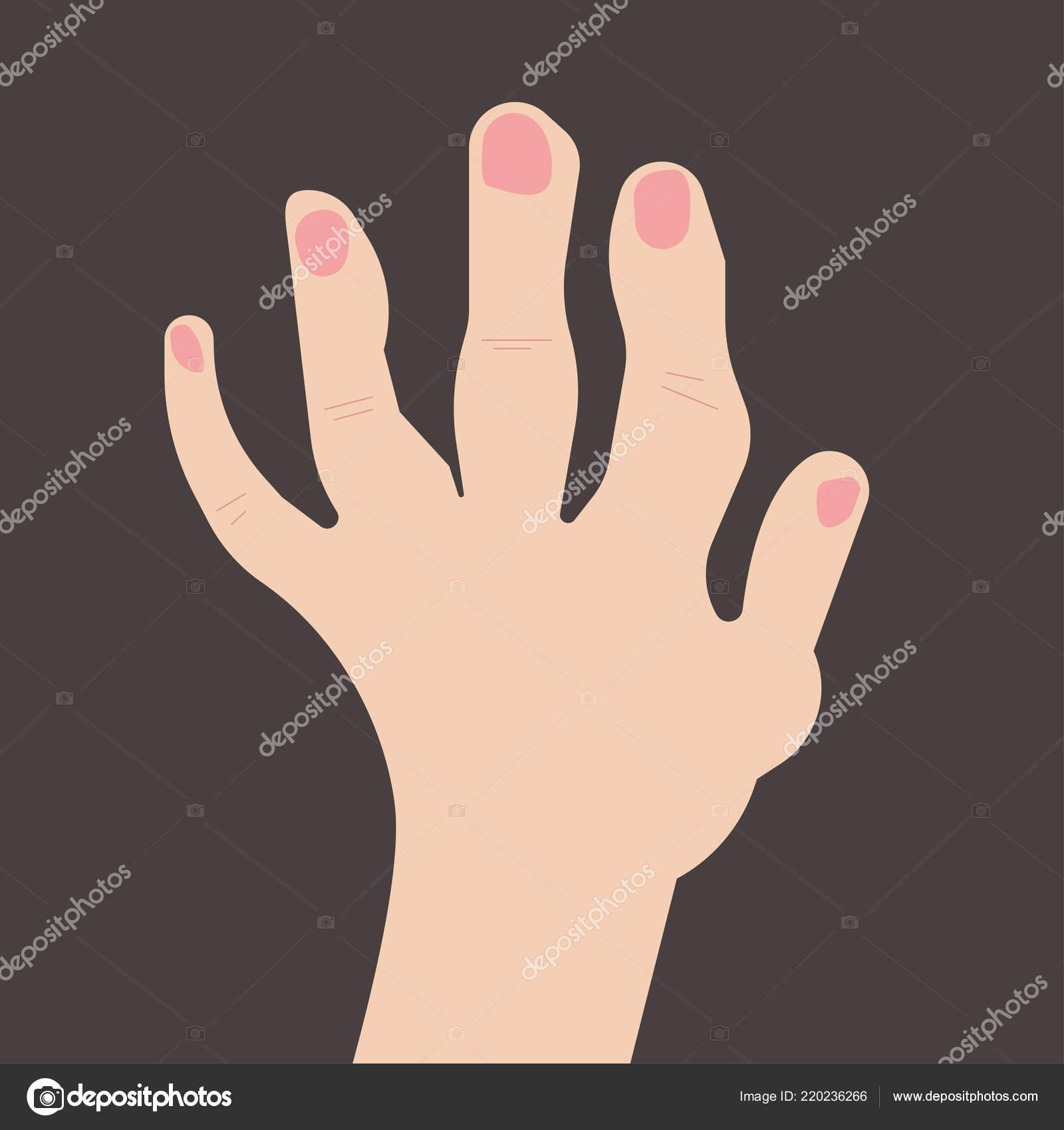 rheumatoid arthritis zsibbadt kezek)