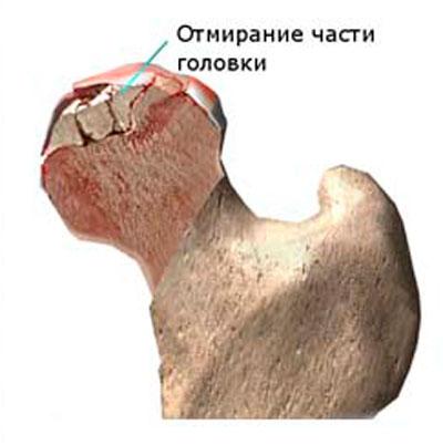 a térdízület 3. fokú deformáló artrózisa gyógyszer az ízületekre