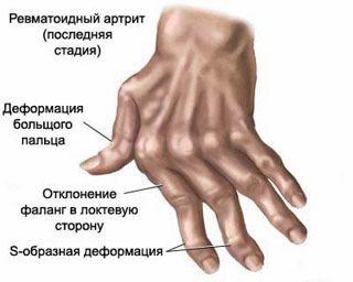 duzzanó fájdalom az ujjak ízületeiben