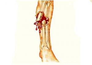 bokaízületek deformáló artrózisának kezelése