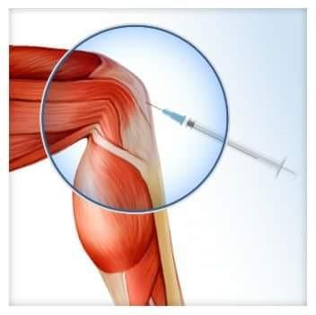a térd osteoarthrosisának hatékony kezelése)
