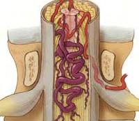 melegítő kenőcs a mellkasi régió osteokondrozisához