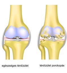 pr térdízület fájdalma)