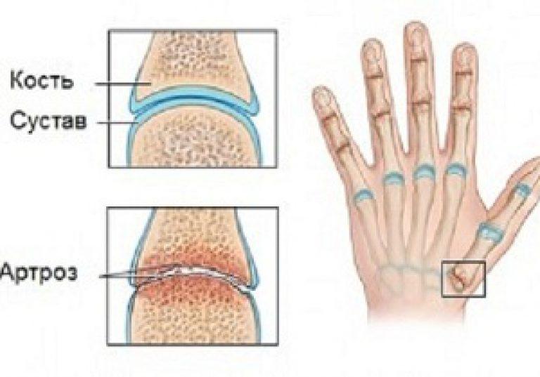 tűlevelű fürdők artrózis kezelésére