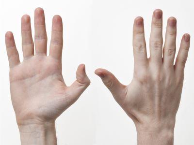 a térd külső meniszkuszának károsodásának tünetei fájdalom ízületek a rozsda