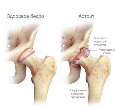 hogyan nyilvánul meg a csípő artrózisa