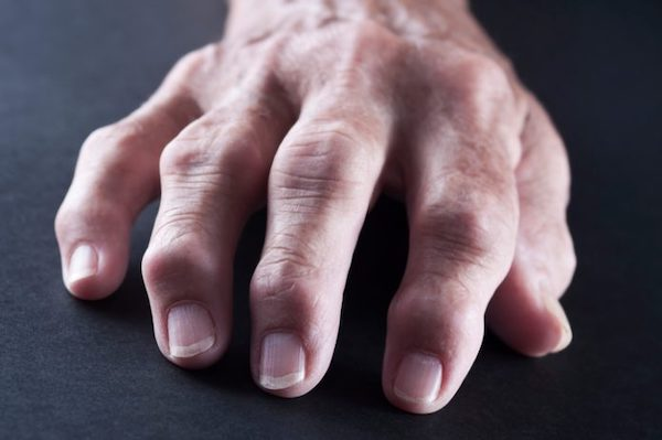 ujj izületi fájdalmak kenőcs ízületeknél novokaiinnal
