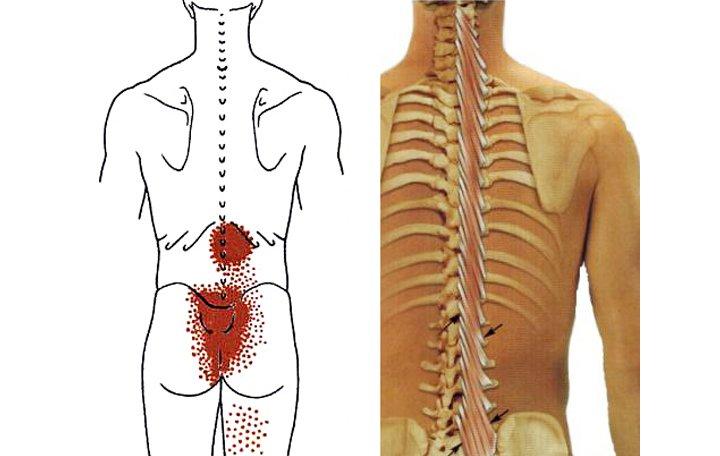 fájdalom a hát alsó részében és a lábak ízületeiben)