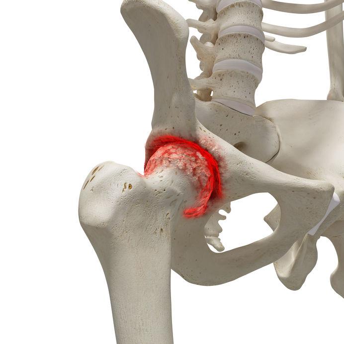 csípőízület osteoporosis kezelése)