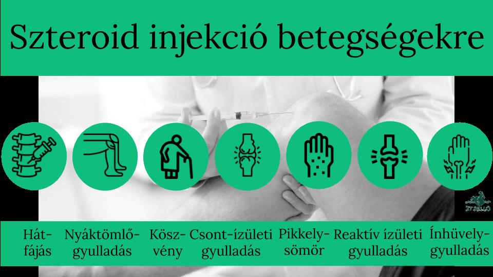 hidrokortizon térd ízületi gyulladás esetén