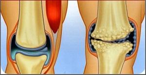 az artrózis kezdeti formájának kezelése térdízület bemelegítés