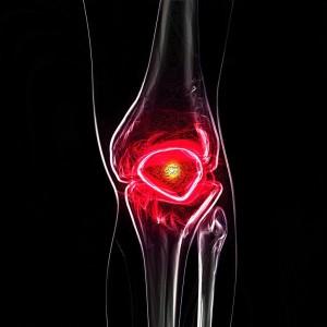 glükózamin-kondroitin az ízületek felülvizsgálatához a kis ujjízület fáj a ütés után