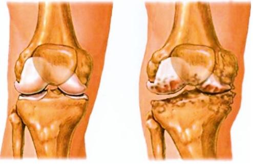artrózis kezelő orvos
