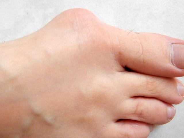 nagymama dörzsöli az együttes kezelés a könyök artrózisa a kezelésre