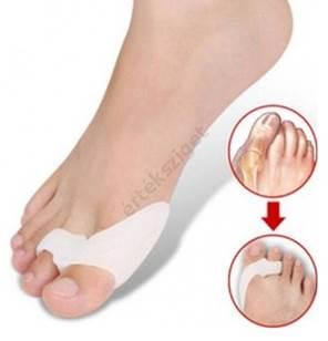 A lapos lábak foka - Zúzódások