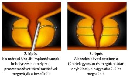 kórtörténet térd ligamentum törés a kézízületek ízületi gyulladás tünetei