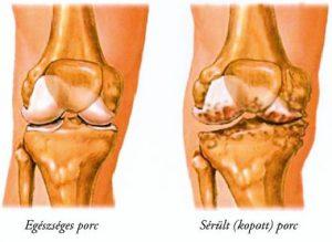 első fokú csípőízület artrózisának kezelése