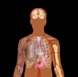 tüdőgyulladás után ízületi fájdalom)