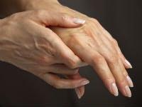 diprilif gél ízületi fájdalmak kezelésére fájdalom a térdízület hajlítása és meghosszabbítása során