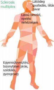 térd sclerosis kezelés