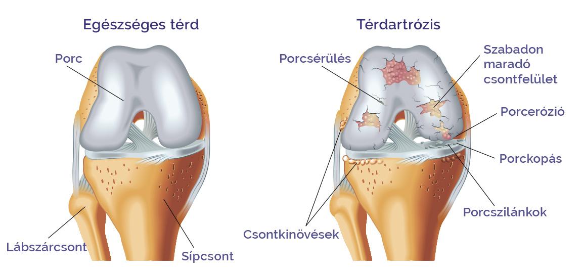 térdízületi 3. fokú artrózis lézeres kezelés