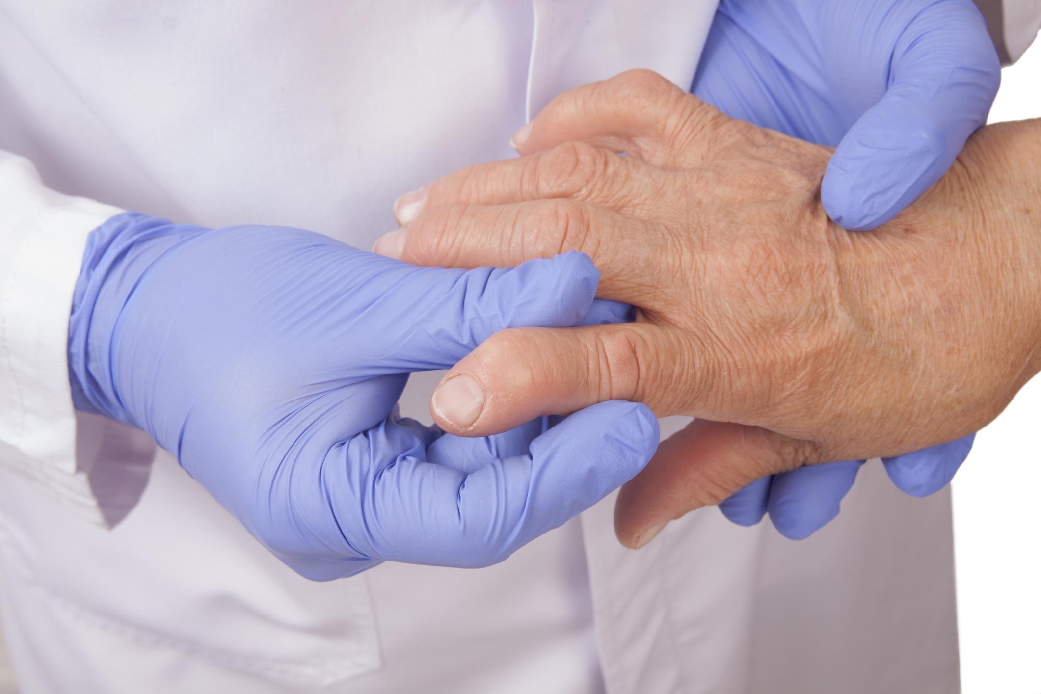 a kézízületek 1. fokú ízületi gyulladása)