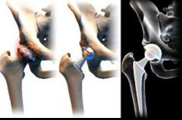 csípőízület artrózisának gyógyszeres kezelése)