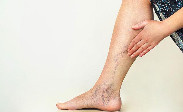 fájó láb sarok és a hát alsó része a térdízület duzzadt és fáj