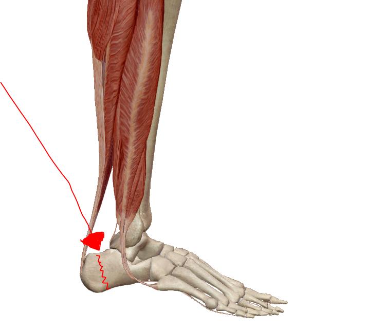 fájó láb sarok és a hát alsó része ajánlások az artrózis kezelésére