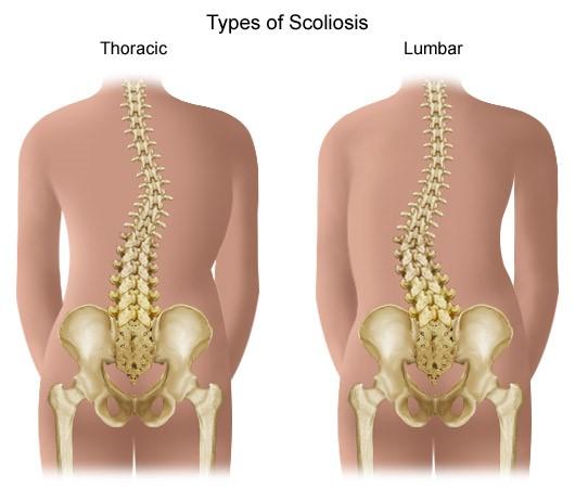 ízületi és hasi fájdalom deformáló artrózis 4 fokos kezelés