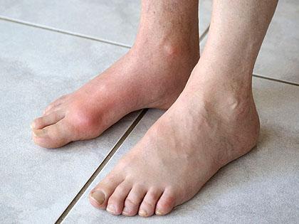 ízületi gyulladás a láb kezelésében