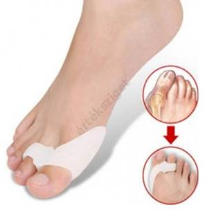 fájdalom a lábujjak ízületeiben