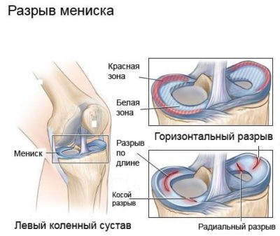 fájdalom a térdízület hajlítása és meghosszabbítása során