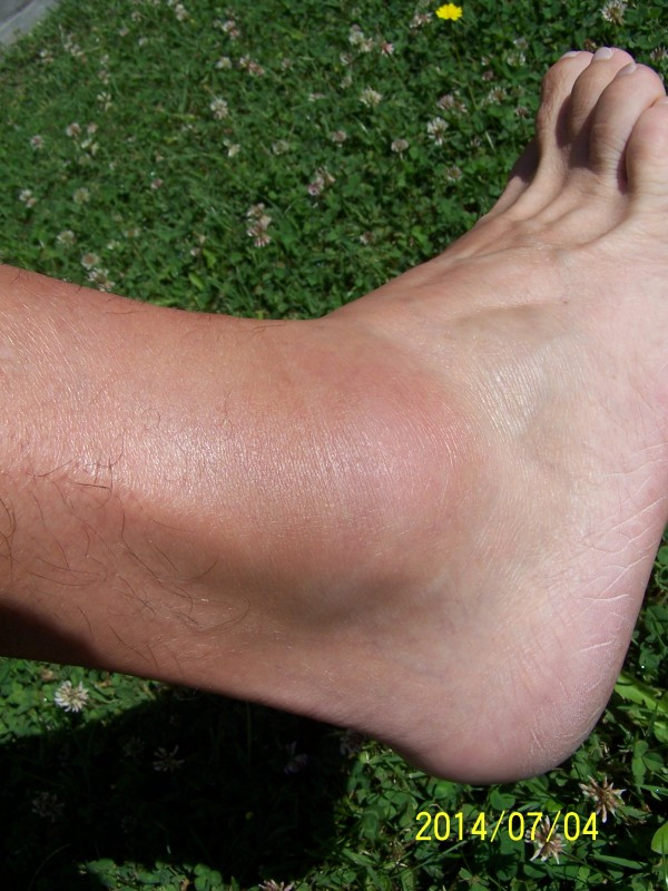 fájdalom és duzzanat a bokaízület kezelésében