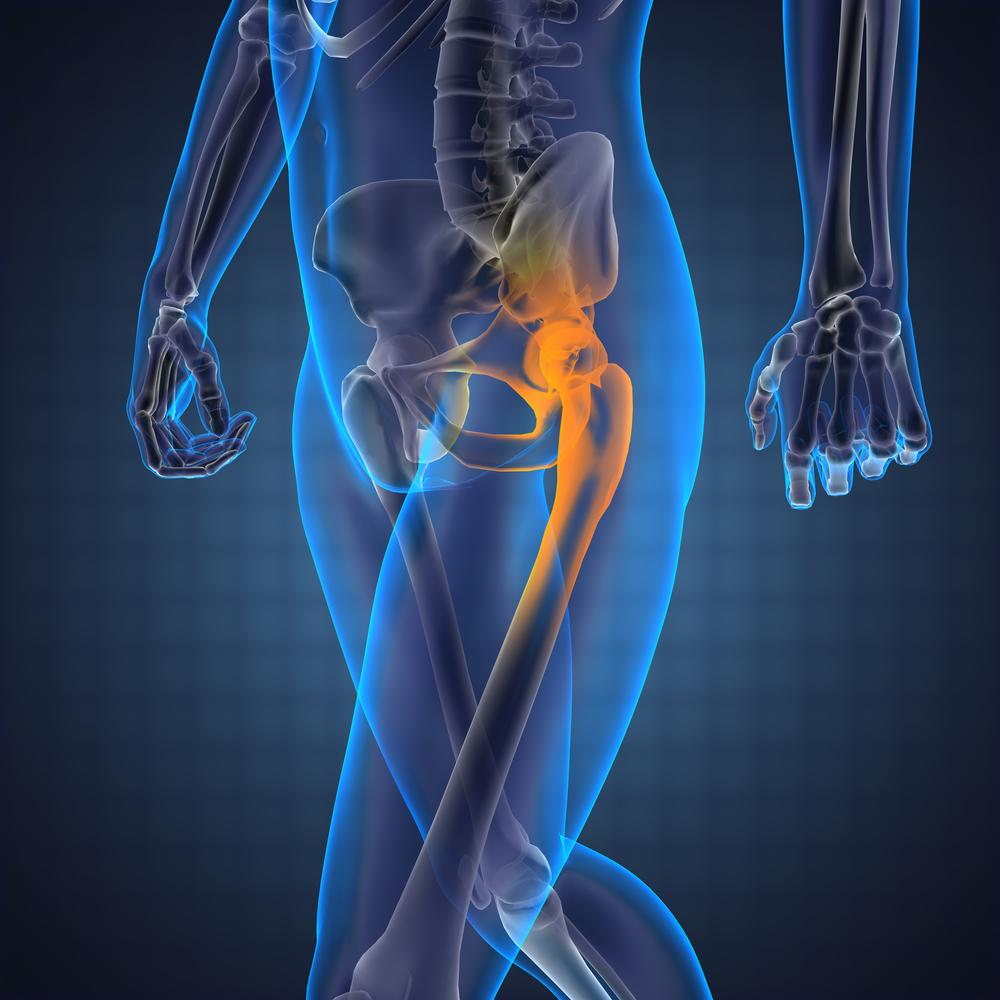 fájdalomcsillapítás a csípőízület kezelésében)
