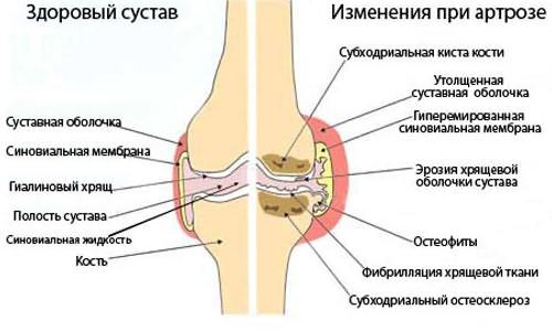 főzés az artrózis ízületei számára)