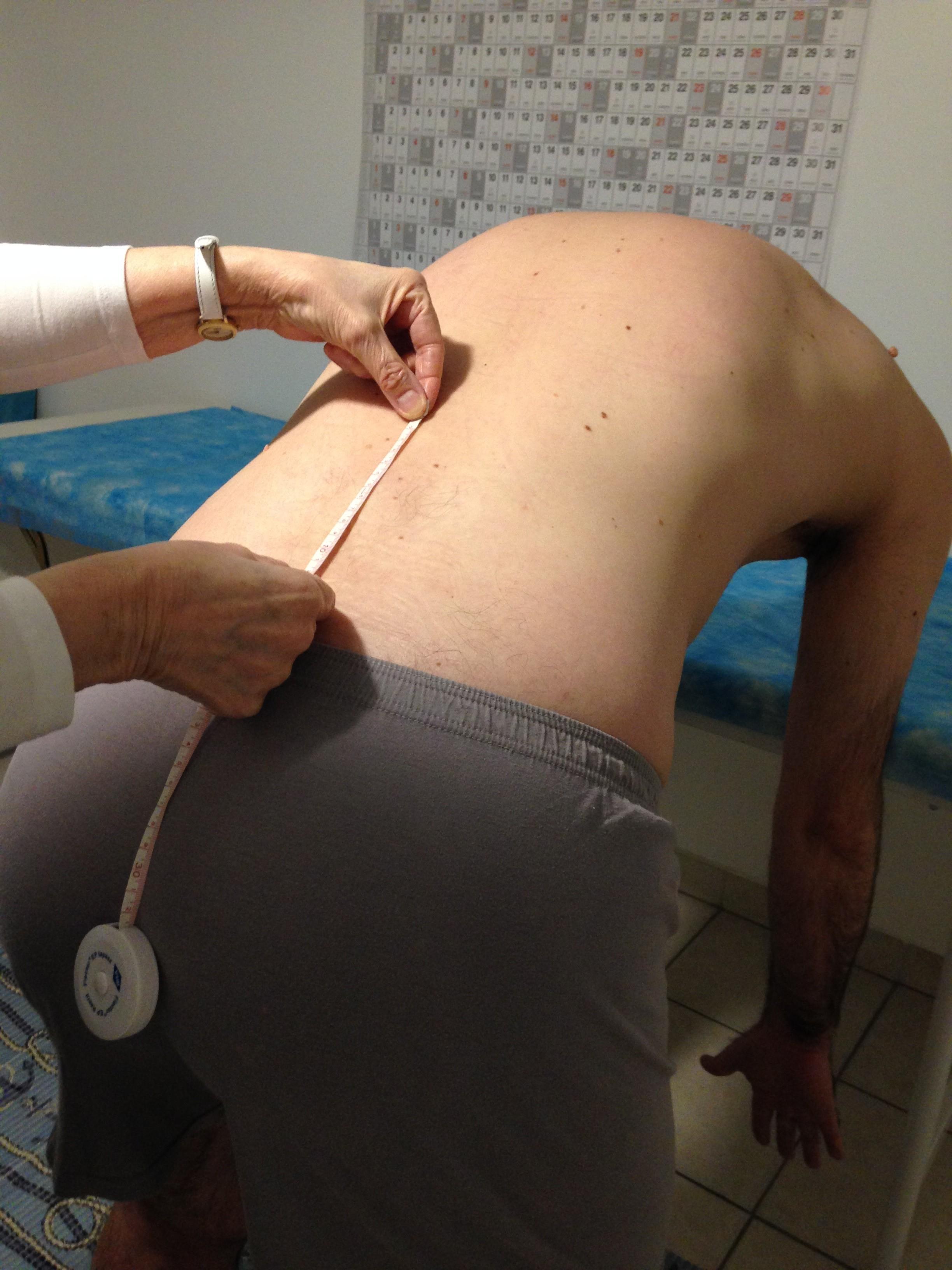 gerinc izületi gyulladás)