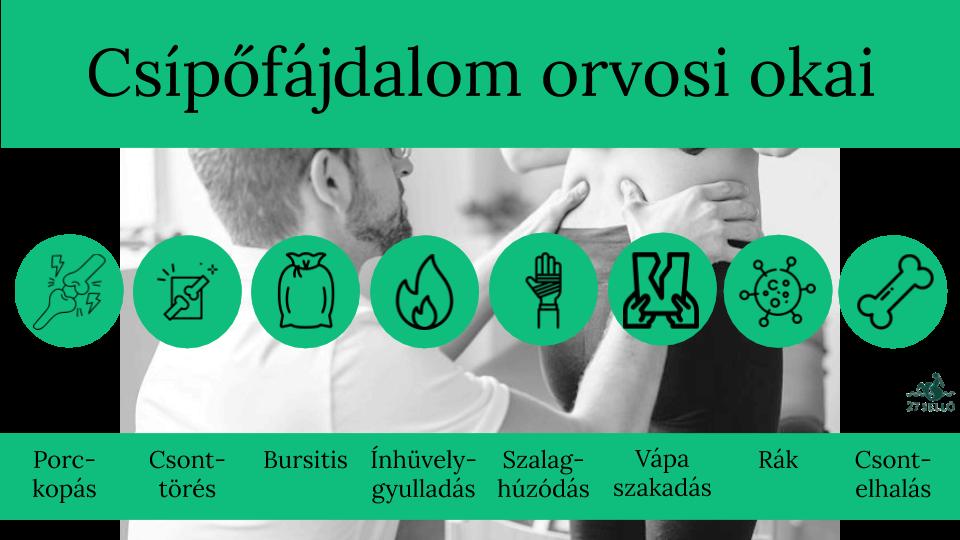 gyógyszer csípőízületi gyulladás kezelésére)