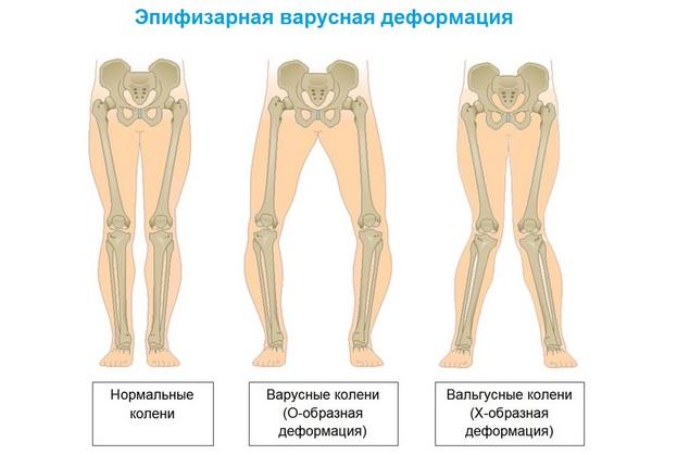 ágyék fájdalom, csípőízületek artrózisával közös terápia teraflex ár