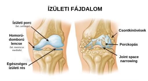Ízületi gyulladás influenza alatt és után: 3 ok a fokozott fájdalom mögött