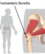 hajlított csípőízület kezelése