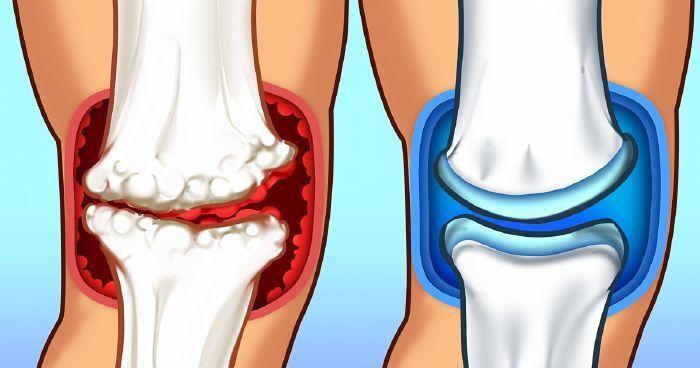 hogyan enyhíthető a láb ízületi gyulladása)