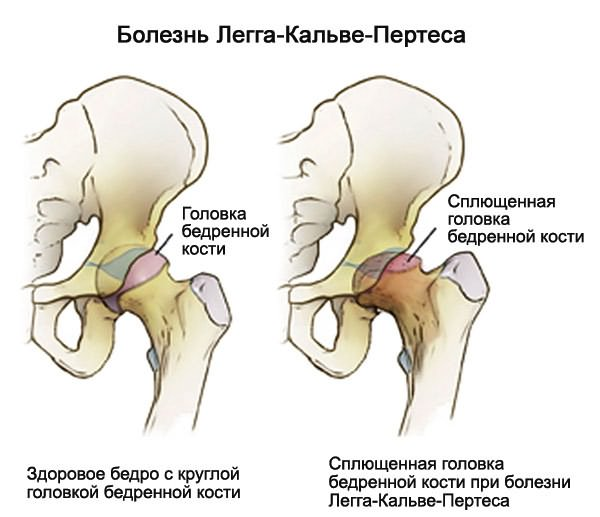 hogyan kezelhető a coxarthrosis deformáló arthrosis)