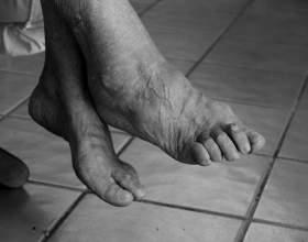 hogyan lehet eltávolítani az ödémát a bokaízület artritiszével
