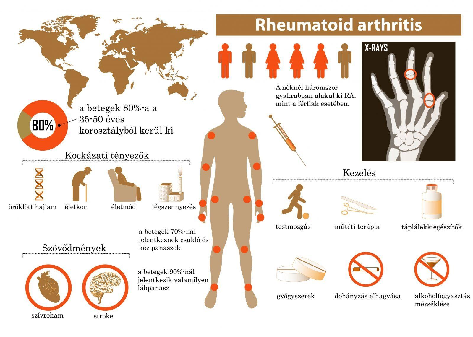hogyan lehet gyógyítani a rheumatoid arthritis hogyan kezeljük